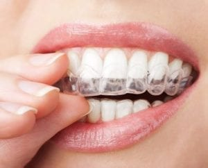 teeth whitening tray