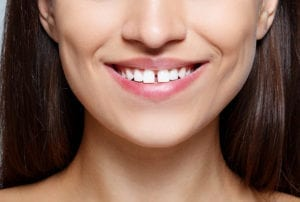 woman with tooth gap