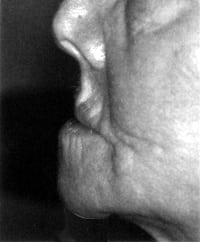 profile of woman with facial collapse