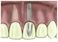 dental crown placed over dental implant root form