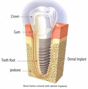 diagram of dental implant root form implanted in jaw bone