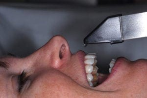 The camera used to create the impression for cerec crowns is much preferred by our patients.
