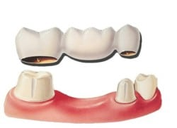 Dr. Perry will help you decide if a dental bridge or a dental implant will be better for you.