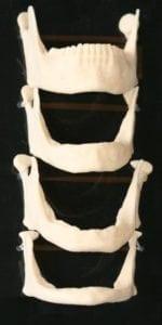 Diagram depicting jaw bone deterioration over time.