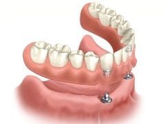 If you are unable to get full implants, a denture stablized by mini dental implants is a more stable solution.