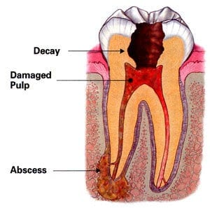 ing root canal treatment.