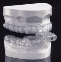 This is an example of mandibular advancement appliance for treatment of Baton Rouge sleep apnea.