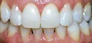 The same smile after an at-home whitening course of treatment.
