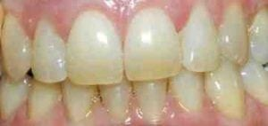 Teeth before the whitening process.
