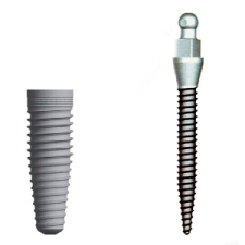 affordable dental implants - diagram comparing root forms for standard dental implant and mini dental implant