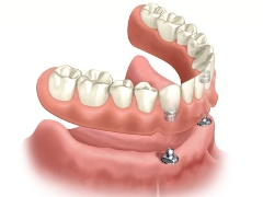 dentures anchored by mini implants
