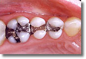 This picture shows mercury (amalgam) fillings in place.