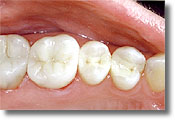 Same teeth with amalgam fillings removed and white fillings in place.